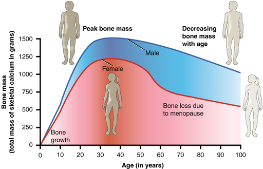 Parkinson's: Managing bone health and fracture risk: View as single page