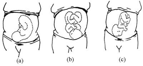 Antenatal Care Module: 11  Assessing the Fetus: View as single page