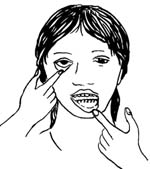 A woman pulling her bottom lip down and her lower eyelid to check for paleness.