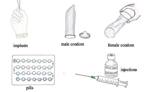 Antenatal Care Module: 20  Abortion and other Causes of Early