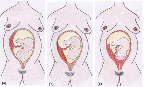 Three diagrams of the three classifications of placenta previa showing how it appears in the womb.