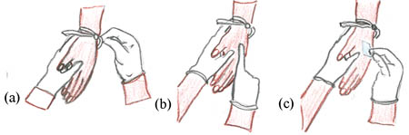 The three steps to inserting an IV cannula.