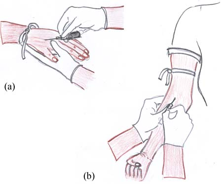 Two images showing hoe to insert a cannula into a vein in the patients hand and in the forearm.
