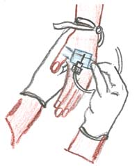 The figure shows the cannula inserted into the hand being held in place by a plaster.