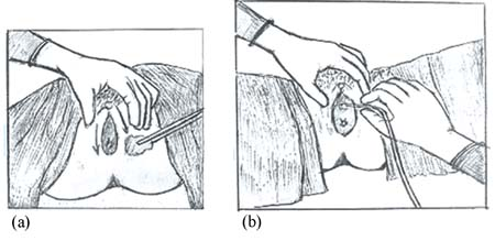 The area around the vulva and the perineum is cleaned with an alcohol swab. The labia majora is gently pulled back to expose the urethral opening and the catheter is inserted.