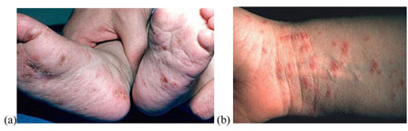 Scabies sores on feet and wrist