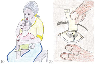 Treating a child with tetracycline eye ointment