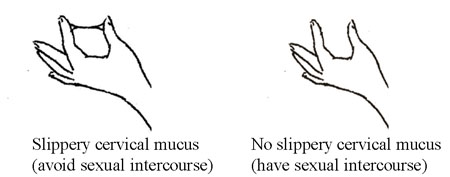 Diagrammatic illustration of slippery and non-elastic cervical mucus.