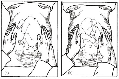 Lateral palpation being used to establish the direction in which the fetus is facing.