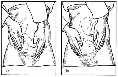 Deep pelvic palpation–the third manoeuvre helps to determine the presenting part.
