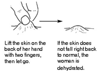 Dehydrated skin is shown being pinched and not falling back to normal.