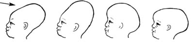 Normal variations in moulding of the newborn skull, which usually disappears within 1F02D3 days after the birth.