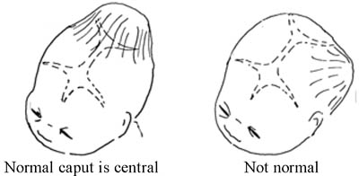 A caput (swelling) of the fetal skull is normal if it develops centrally, but not if it is displaced to one side.