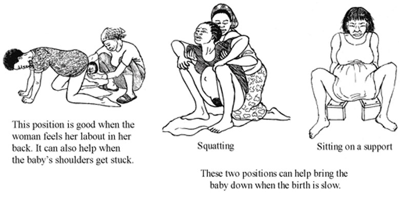 Three different positions the mother may like to be in during the second stage of labour. Position one is on all fours with face down, position 2 is squatting and position three is sitting on a support.