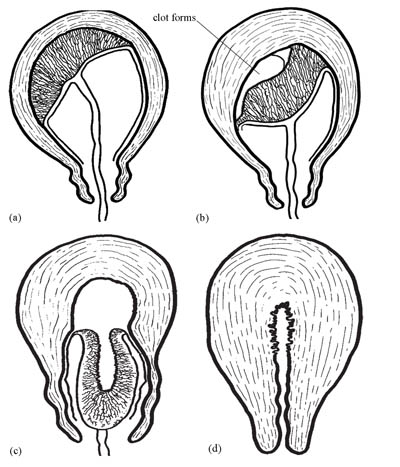 (a) Placenta not separated at the beginning of third stage. (b) Placenta begins separating and a blood clot forms behind it. (c) Placenta descending through the cervix. (d) Placenta completely expelled marks the end of third stage; the uterus contracts powerfully.