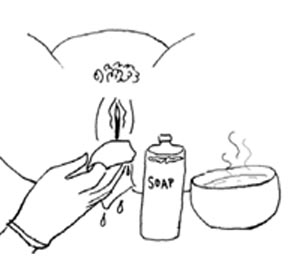 A mother's genital area is cleaned with soap and hot water.