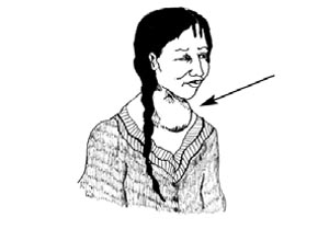 A woman with a swelling in the front of her neck.